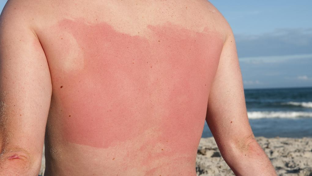 Los niños no pueden ser expuestos al sol durante un tiempo prolongado.