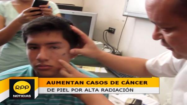 Médicos del Hospital Almanzor participaron en campaña de despistaje de cáncer de piel.