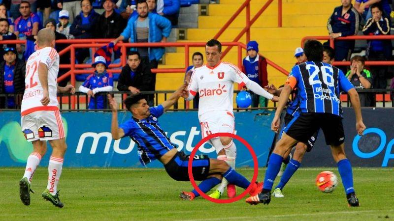 Sebastián Ubilla (25 años) sufrió aterradora fractura durante partido oficial.