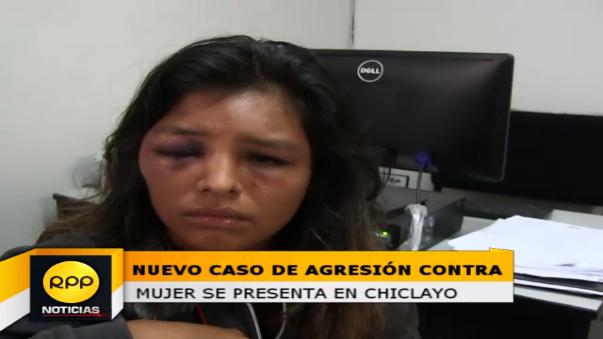 Mujer contó que fue golpeada por su pareja luego que le reclamó que haya ido a visitar a sus familiares.