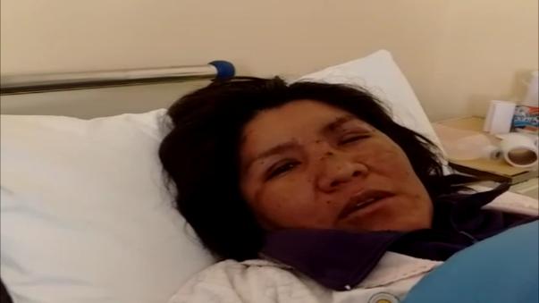 Jovana Cartagena pide que capturen a su agresor.