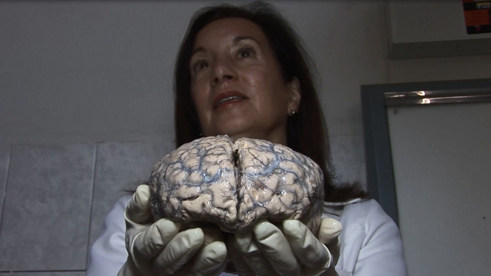 La neuropatóloga peruana Diana Rivas muestra uno de los cerebros enfermos de la exposición.