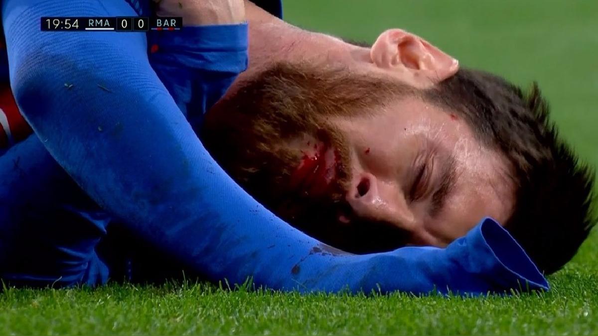 Messi quedó ensangrentado en el primer tiempo ante Real Madrid.