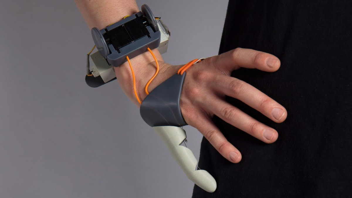 La nueva protesis de dedo te ayudaría a cargar objetos con solo dos.