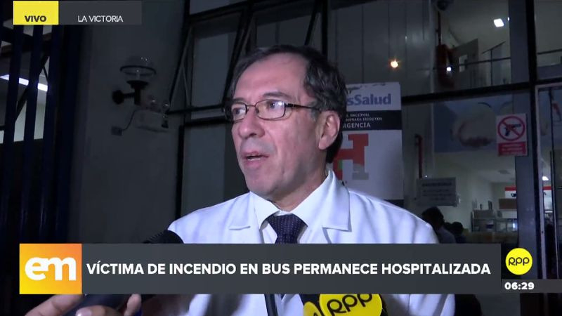 Eyvi Agreda presenta quemaduras de segundo y tercer grado, informó el doctor Luis Bromley, director del Hospital Guillermo Almenara.