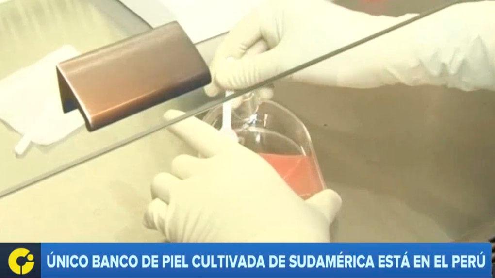 El Banco de Tejidos del Instituto Nacional de Salud del Niño es el único en su tipo en Sudamérica.