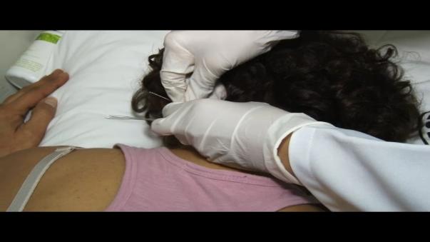 como se aplica la acupuntura